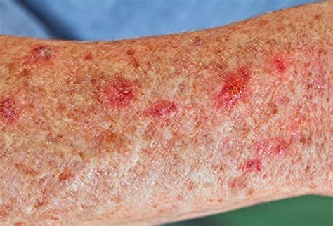 Skin Problems: Weird Conditions Associated with Aging
