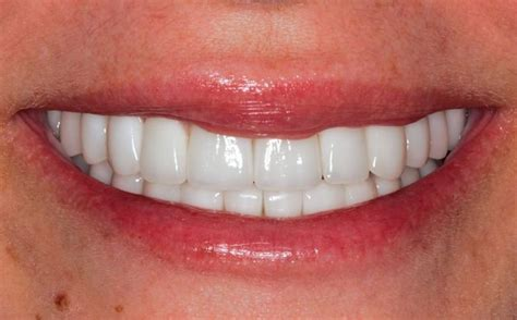 Severe Decay from dry mouth restored with Full Mouth