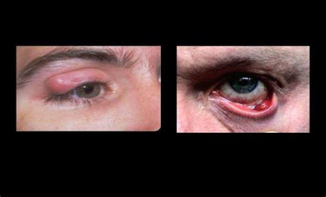 Common Ophthalmic Disorders | nurseinfo