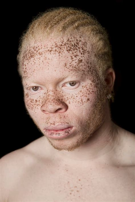 A Chronicle About Living With The Disorder 'Albinism'