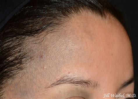 Nevus of Ota Before and After Pictures in Miami, FL