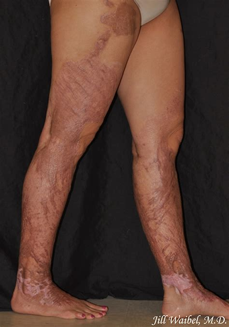 Burn Scars Before and After Pictures in Miami, FL   Miami