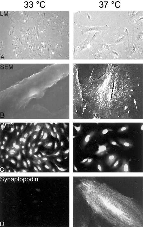 A Conditionally Immortalized Human Podocyte Cell Line