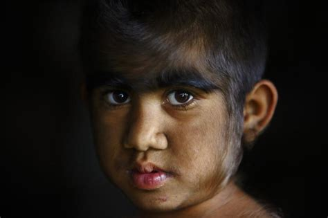 Family With 'Werewolf Syndrome' Undergoes Laser Hair