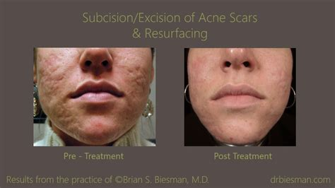 Acne Scar Treatment Before and After Gallery   Nashville, TN