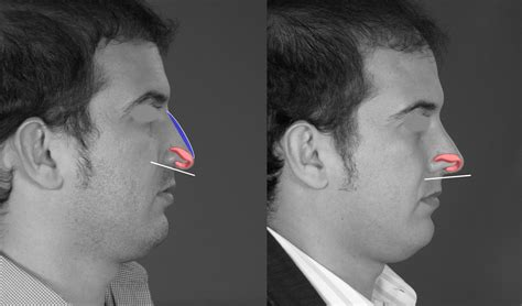 Can You Alter The Nose Height & Length At The Same Time?
