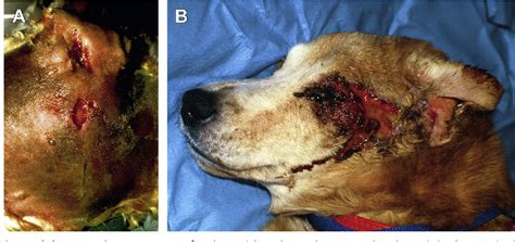 Figure 1 from Treatment of Persistent Deep Infection After