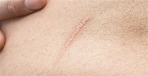 Scar Reduction Springfield | Acne Scar Removal Springfield