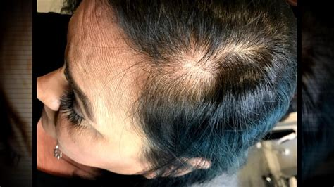 Scalp Microblading Offers New Hope to a Woman with